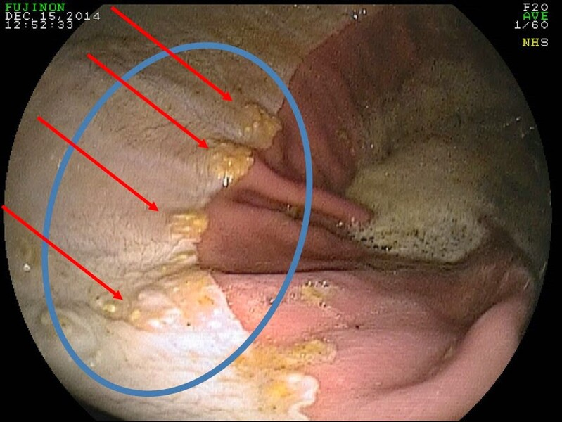 Animal Mrt Gastric Ulcers In Relation To Muscular Pain